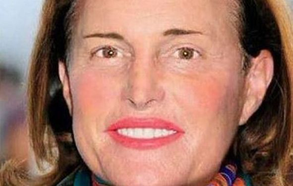 Bruce Jenner's Transformation